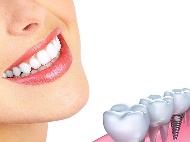 Dịch vụ cấy ghép răng implant tại nha khoa Tây Đô